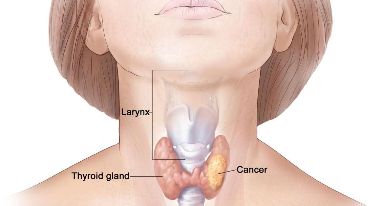 Tiroid Kanseri Nedir?